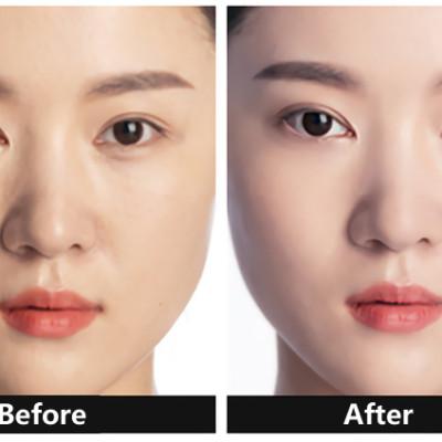 before use concealer & after use concealer
