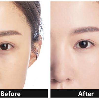 before use concealer & after use concealer (3)
